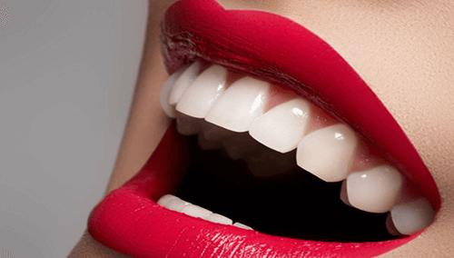 Teeth Whittening