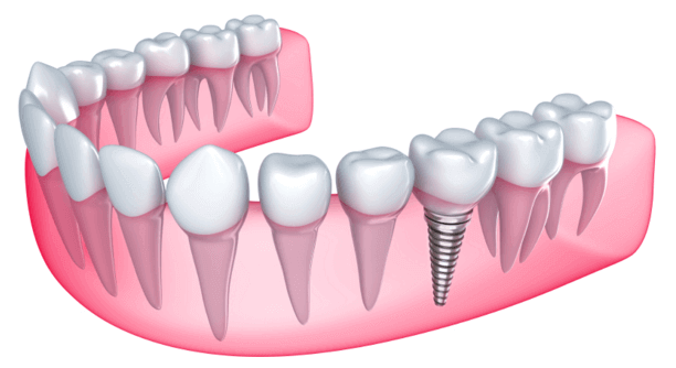 dental implant3 (1) (1)