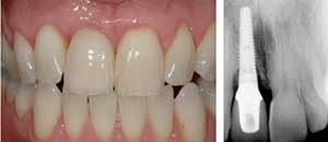 dental implants in the south bay