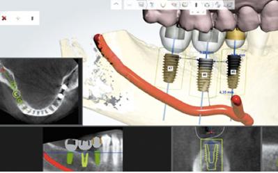 redondo beach dental implants