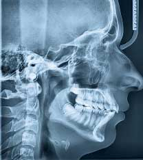 Head jaw X-ray
