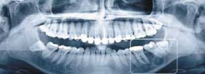 dental implans x-ray