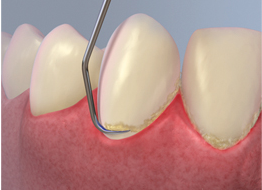 Dentist Dental Deep Cleanign
