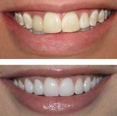 veneers redondo beach dentist