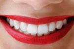 cosmetic dentist Redondo Beach, torrance, Hermosa Beach