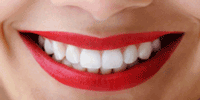 teeth whitening rendondo beach