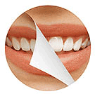 dental crowns bridges