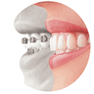 dental braces retainers , dentist Redondo Beach, CA