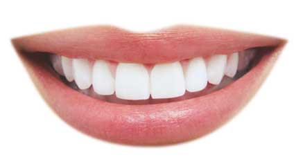 Teeth whitening Torrance, Hermosa Beach
